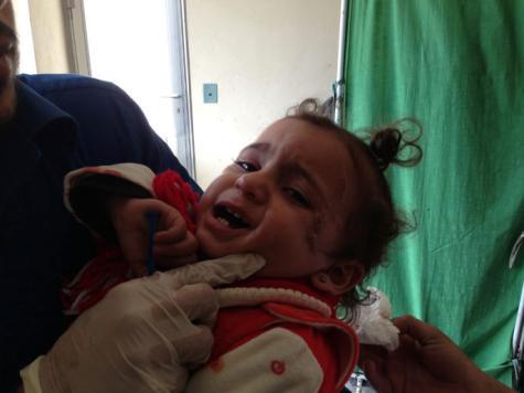 اللشمانيا بات وباءً يفترس السكان بمدينة حلب وريفها